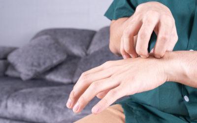 Chronic Idiopathic Urticaria's Impact on Quality of Life