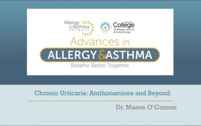 Chronic Urticaria – Antihistamines and Beyond