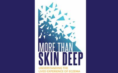 Patients With Eczema Unite to Help Inform Drug Development