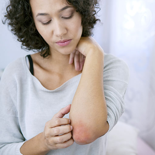 Photo of woman scratching a rash on her elbow