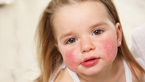 Photo of young girl with a rash on her face