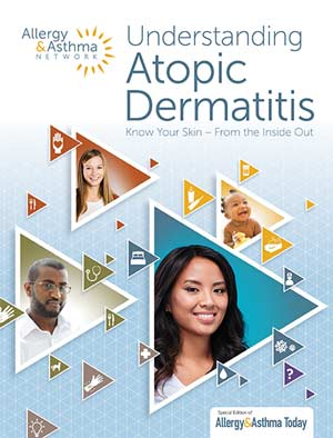 Cover of Atopic Dermatitis Guide