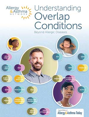 Cover of Overlap Conditions Guide