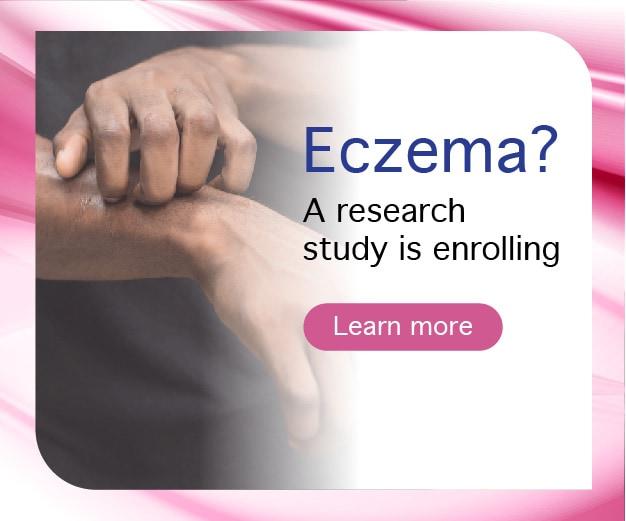 Photo of Eczema study image