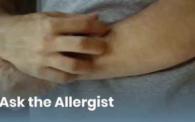 Ask the Allergist: Understanding the Causes of Hives and Angioedema
