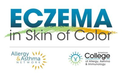 New Website Spotlights Unique Differences of Eczema In People of Color